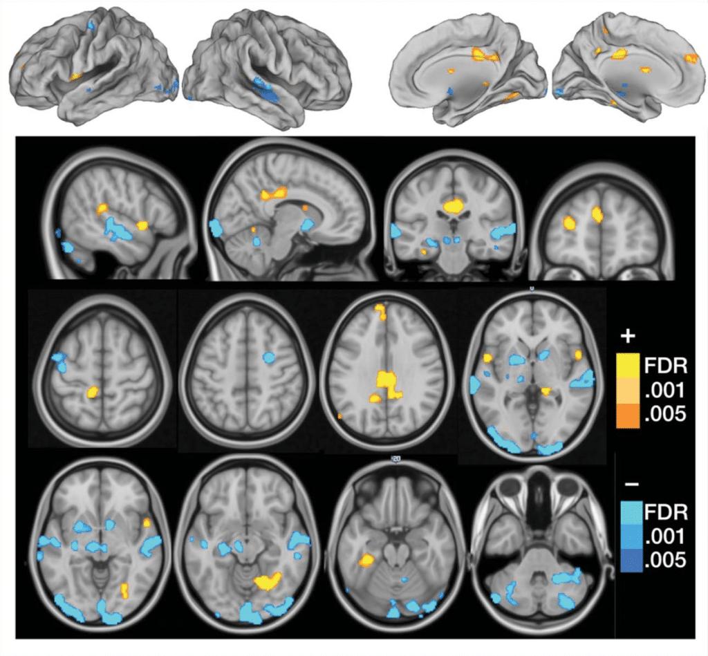 diagnose fibromyalgie hersenen handtekening