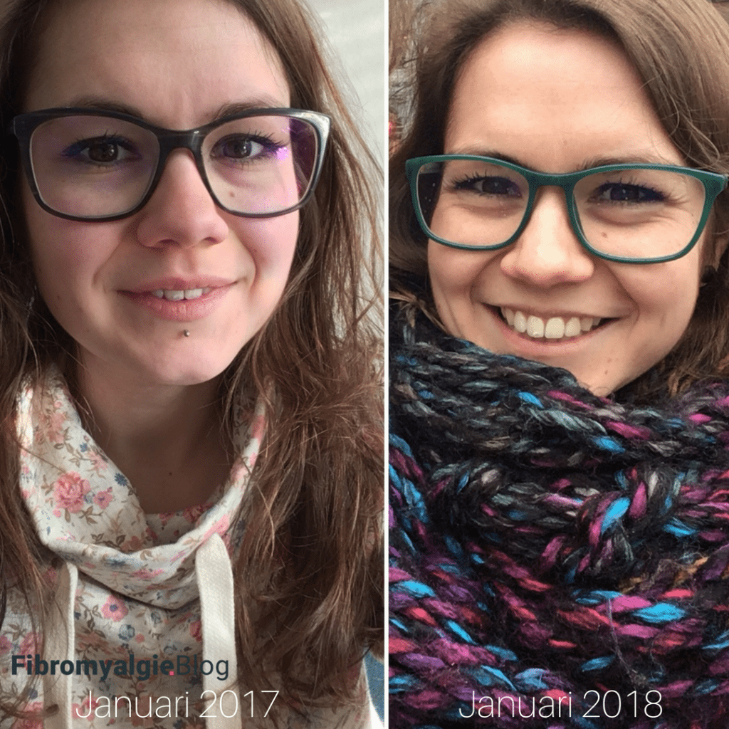 Burn out-fibromyalgieblog-nathalie-herstel-2017-2018
